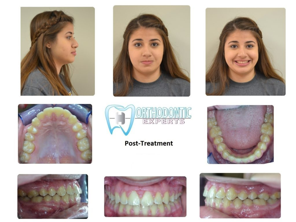 Orthodontic Experts Of Colorado Spring