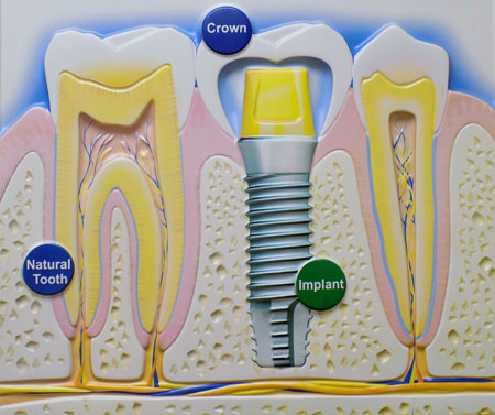Is your tooth missing? Dental implant is the best option