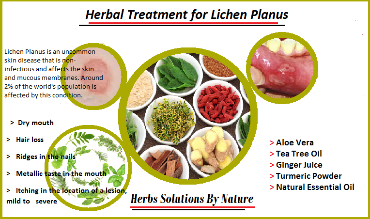 Herbal Treatment for Lichen Planus