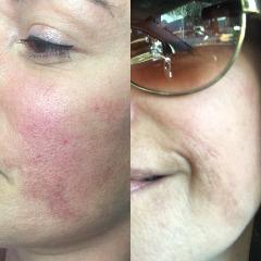 Microblading Clinic NYC | Microneedling Miami Beach | Karmina Beauty Clinic
