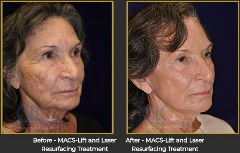 Best Results Cosmetic Surgery Stockton- Dr. Gerald Bock