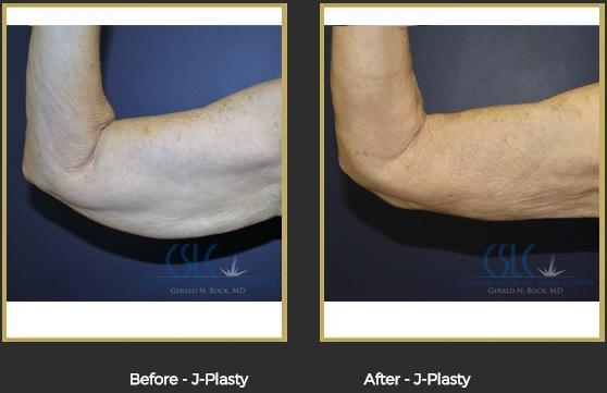Best Results J-Plasty Stockton- Dr. Gerald Bock