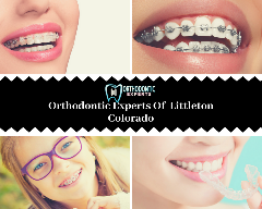 Invisalign in Littleton by Orthodontic Experts Of Colorado