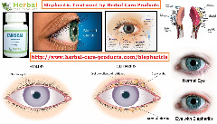 Natural Treatment for Blepharitis