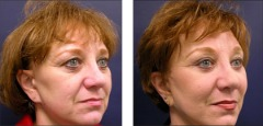 Best Mid Face Lift Surgeon | Mid Face Lift Surgery | Mid Facelift Cost