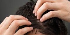 Best Robotic Hair Transplant method in  Richmond - Neograft