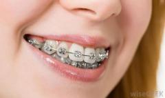 Need Dental?