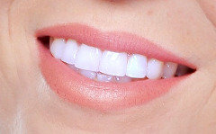 Teeth Whitening 50% Off