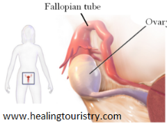 Abscess - Pelvic Causes, Symptoms, and Treatment | Healing Touristry