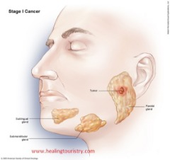 Adenocarcinoma: Types, Diagnosis, and Treatment | Healing Touristry