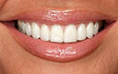 Teeth Whitening in Castle Hills