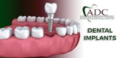 Annapolis Dental Center - Dental Implant Treatment services in Annapolis