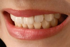Smile Makeover Cosmetic Smile Analysis