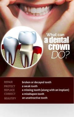 Dr. Pablo Foncea Affordable Dental Crowns in Knoxville TN